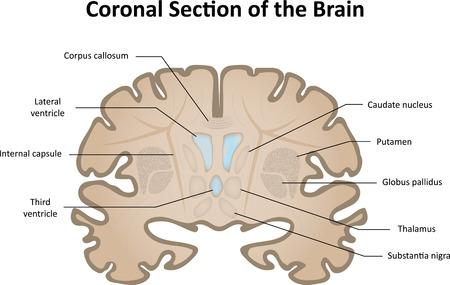 Sección coronal del cerebro