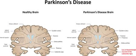パーキンソン病の図