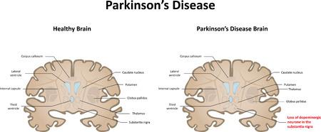 coronal: Parkinsons Disease