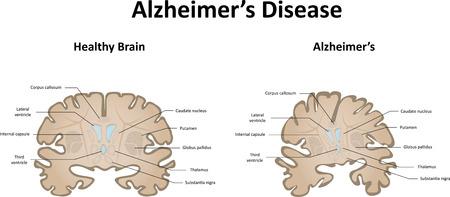 commercial medicine: Alzheimers Disease Illustration
