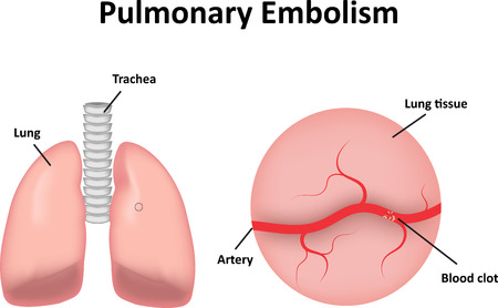 embolism: Pulmonary Embolism Labeled Diagram Illustration