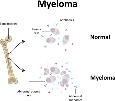 Myeloma Illustration