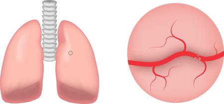 embolism: Pulmonary Emoblism Stock Photo