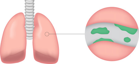 airway: Bronchiectasis