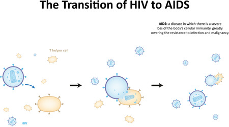 The Transition of HIV to AIDS
