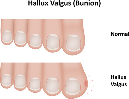 big toe: Hallux Valgus Bunion Illustration