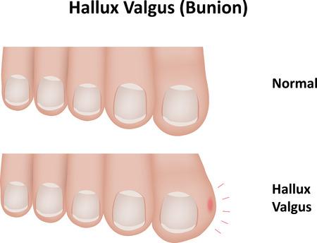 dedo me�ique: Hallux Valgus Bunion Vectores