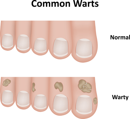 toenail: Common Warts