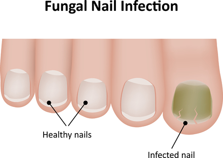 labeled: Fungal Nail Labeled Illustration