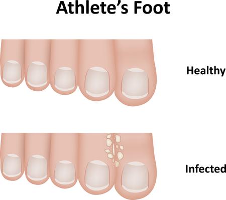 fungal disease: Athletes Foot Illustration Illustration