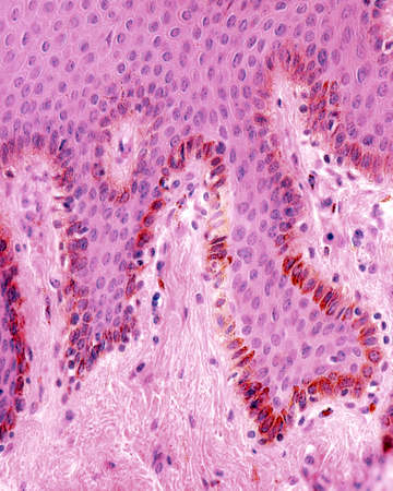 Basal layer of skin epidermis. Numerous melanocytes loaded with brown melanin granules.