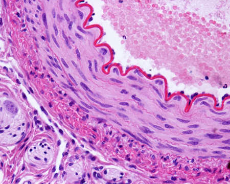 Light micrograph of a cross-sectioned muscular artery, showing a thick and wavy internal elastic lamina, a middle layer with smooth muscle fibers, and an outer connective tissue adventitia. Hematoxylin & eosin stain