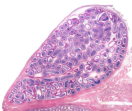 Human epididymis in their anatomical location joined to testicle (located in the bottom border of the image). The epididymal duct is a long tube very coiled filled with spermatozoa, which appear as blue plugs in the lumen of the duct.