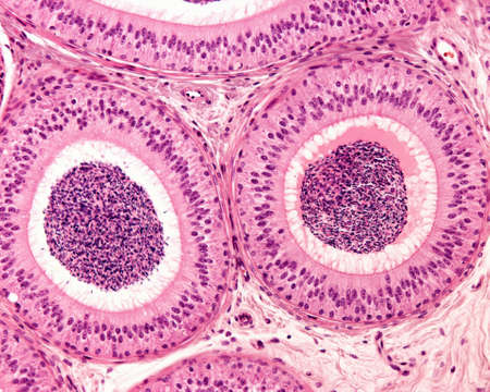 Two sections of the epididymal duct surrounded by concentric layers of fibromuscular tissue. The pseudostratified epithelium consists of tall columnar cells showing stereocilia, and basal cells. The lumen is filled with sperm cells.