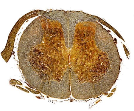 Silver stained cross section of spinal cord.