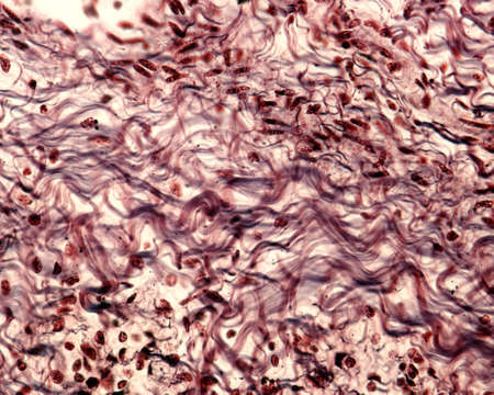 Bundles of collagen fibers in a connective tissue stained with a silver method.  The collagen fibers show a typical wavy appearance.