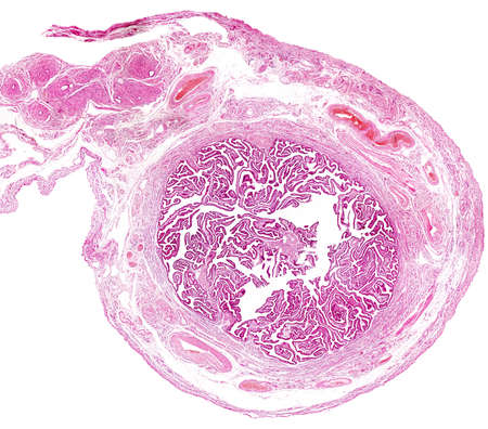 Cross section of a human fallopian tube. The innermost layer is a very folded mucosa. Outside are located the muscular layer and the serosa layer, showing abundant blood vessels, Light micrograph. Archivio Fotografico