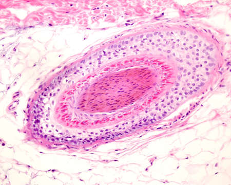 Layers of a human hair follicle in cross section. From outside: hyaline layer, outer root sheath, Henle's and Huxley's layers, inner root sheath, and hair shaft in the center. Stock Photo