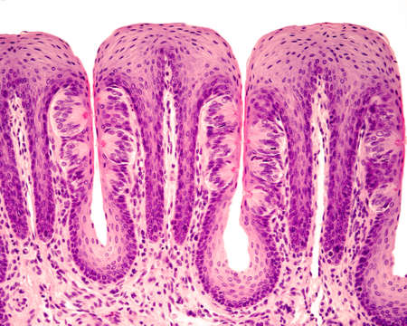Taste buds in foliate tongue papillae. Many of them show the taste or gustatory pore. Hematoxylin & eosin stain.