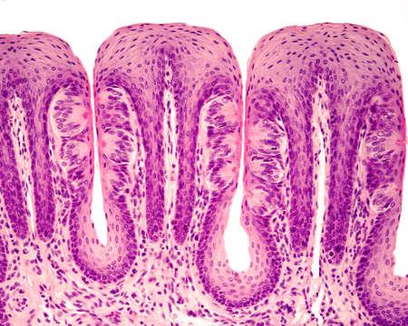 Smaakknoppen in papillaire tongbladen. Velen van hen vertonen de smaak of smaakporiën. Hematoxyline- en eosinekleuring.