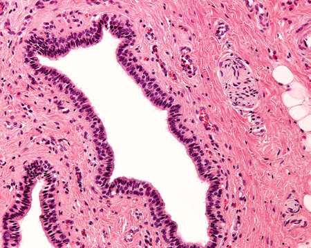 Stratified columnar epithelium. It is a rare type of epithelium composed of columnar cells arranged in several layers (usually only two). Large excretory duct of a salivary gland.