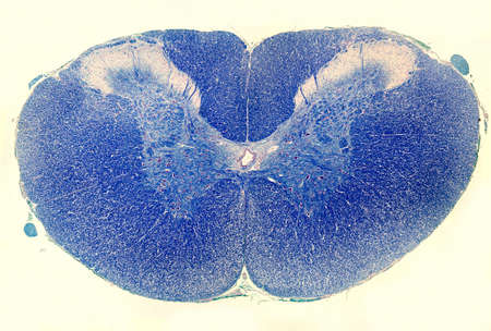 Cross sectioned spinal cord stained with Luxol Fast Blue. The grey matter is located in the centre and is surrounded by the white matter, which is stained in blue because it is rich in myelinated fibers.