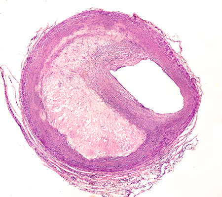 Cross section of an artery, showing an atheroma plaque which reduces drastically the blood vessel lumen, situated at the right.