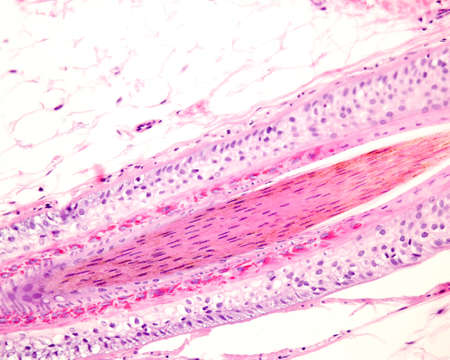 Layers of a human hair follicle in longitudinal section. From outside: hyaline layer, outer root sheath, Henle's and Huxley's layers, inner root sheath, and hair shaft in the center. Archivio Fotografico