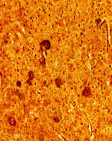 Light microscope micrograph of a senile cerebrum, stained with a silver method. The round dense structures correspond to senile plaques, frequently seen in the Alzheimer disease.