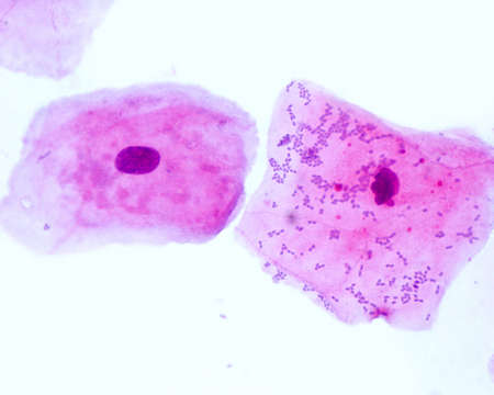 Buccal smear showing squamous epithelial cells exfoliated from the oral mucosae. Small blue dots located mainly on the right cell are bacteria.
