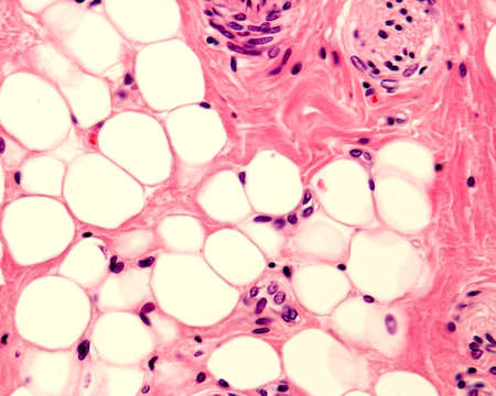 Small adipocyte lobule located in a connective tissue. A small nerve is located in the upper right corner. Light micrograph. H&E stain.