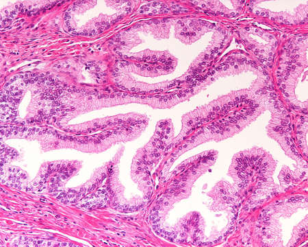 High magnification of a human prostatic gland. A simple columnar epithelium surrounds a very irregular lumen. Hematoxylin & eosin stain.