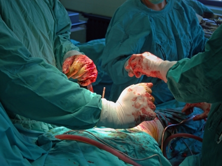 Surgery team are operating a patient