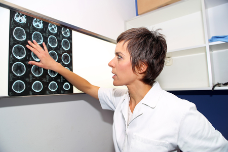 Doctor looks at computed tomography images of head Stock Photo