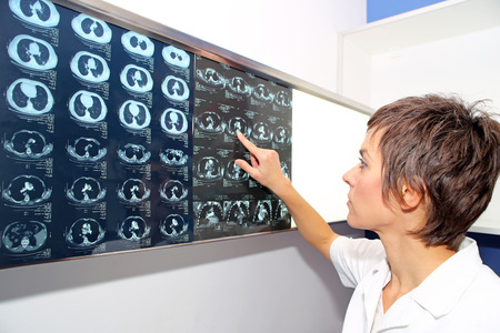 Doctor looks at computed tomography images of lungs