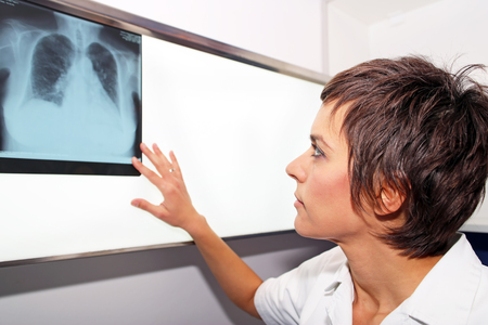 Doctor looks at X-ray images of lungs Stock Photo