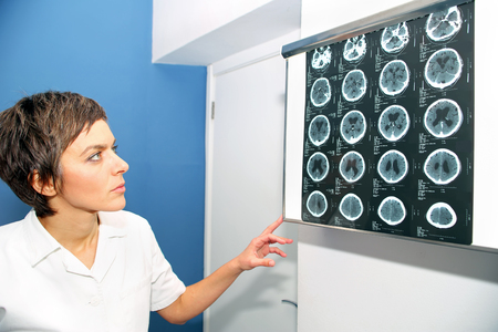 Doctor looks at X-ray images of head