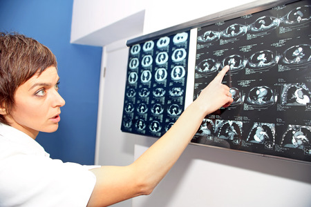 embolism: Doctor looks at computed tomography images of lungs