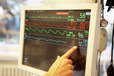 Monitor de signos vitales, frecuencia cardíaca, pulso, baja tensión arterial del paciente enfermo en UCI (unidad de cuidados intensivos)