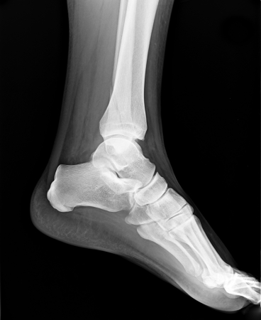 Left foot MRI - X-ray resonance - Medical Image photo