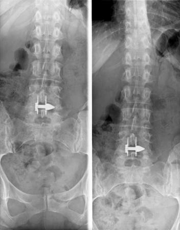 Lumbosacral column MRi - X-ray. plain film - Medical Image photo