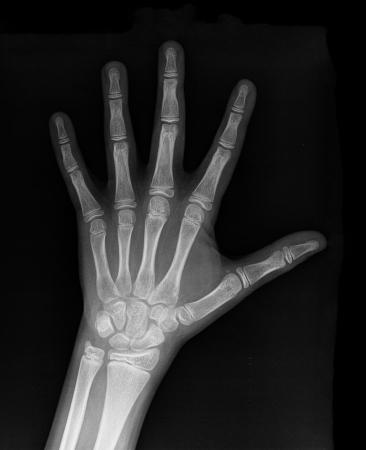 x ray image: Human Left hand x-ray - Medical Image
