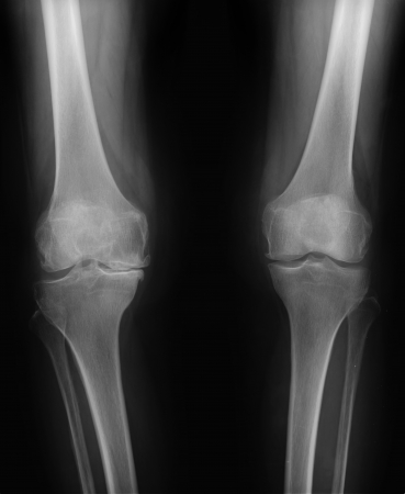 Orthostasis MRI: maintenance of an upright standing posture. In some medical tests a patient may need to maintain orthostasis for a long period to stimulate a rise in aldosterone concentration. photo