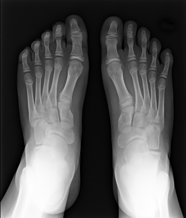 thumb x ray: MRI of Foot fingers exposed on x-ray black and white film Stock Photo