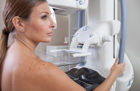 breast examination: Woman ready to undergo mammography scan.