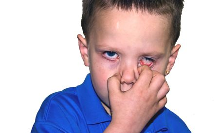 4 Year Old little boy has his hand over his face making a strange facial expression.  Pulling one of his blue eyes down. photo