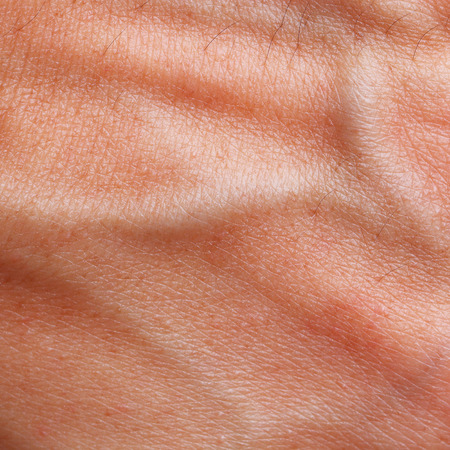 blood vessel: It is Skin texture with blood vessel and hair. Stock Photo