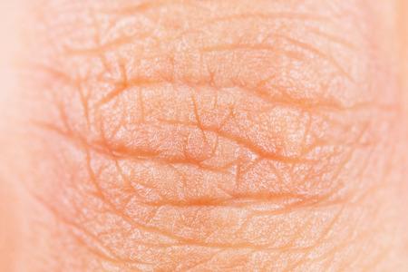 Es ist Finger Hautstruktur.
