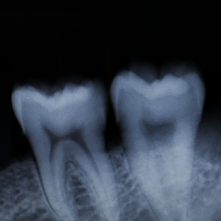 impacted: it is teeth x-ray for pattern and design. Stock Photo
