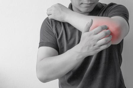 Junger Mann kratzen das Jucken auf seinem Arm Standard-Bild - 86685215